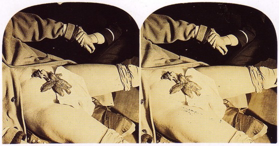 "Stereo slide of Crandon's ""hand"""